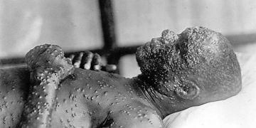 Pravé neštovice patřily k nejnebezpečnějším nemocem. Zahubily stovky milionů lidí. Od roku 1980 jsou díky očkování považovány za zcela vymýcené.