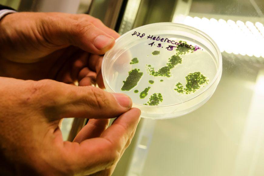Na agarech jsou kultivovány symbiotické řasy izolované zantarktických lišejníků rodu Placopsis.